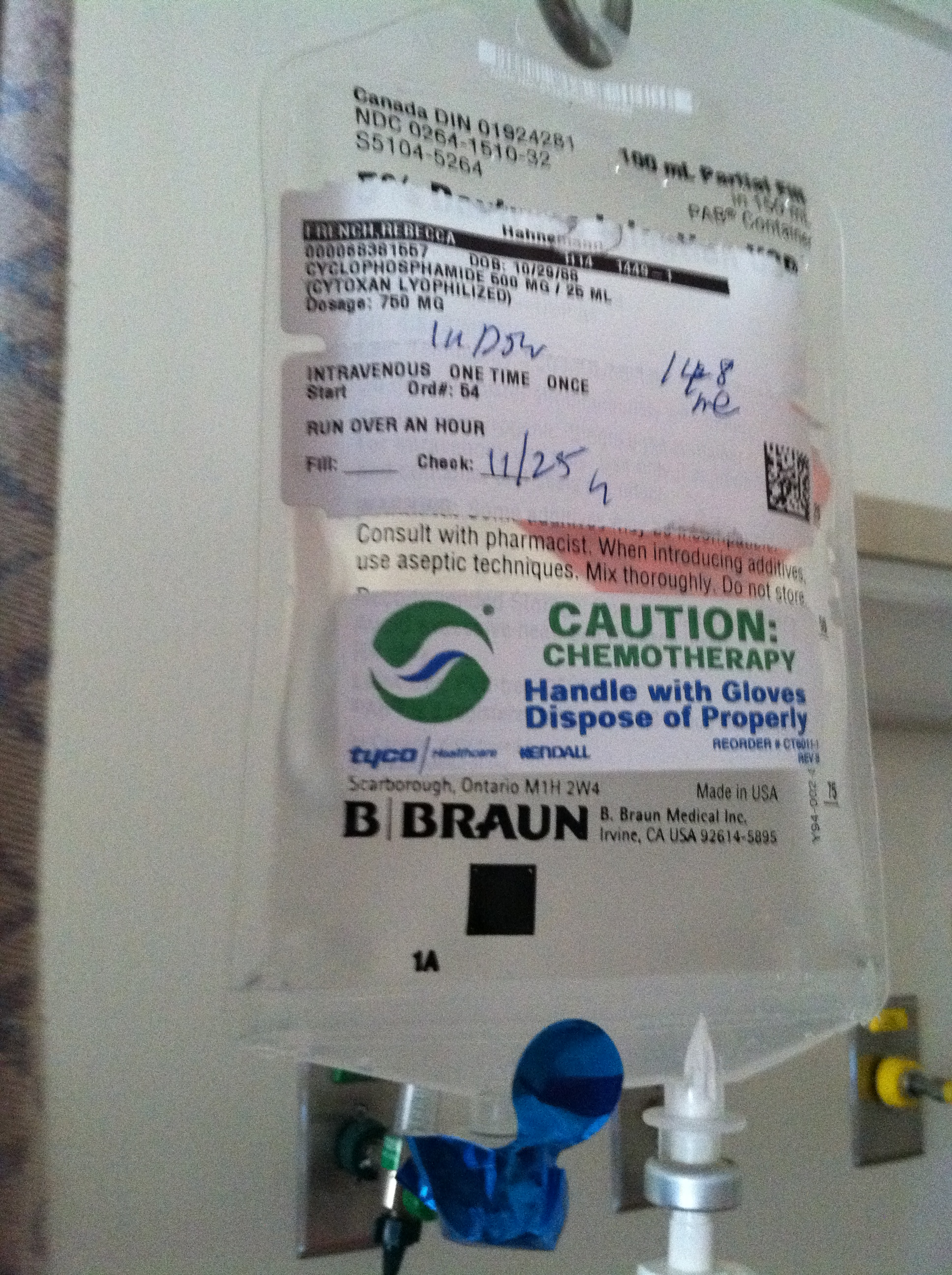 Cytoxan Infusion For Lupus